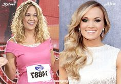 Carrie Underwood Plastic Surgery Before And After #CarrieUnderwood #celebrity http://goo.gl/Mt7fc0