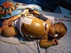 وفاة الطفل حمزة عبد الله طوفان من غزة بعد رفض السلطة علاجه في الخارج Bags Duffle Duffle Bag