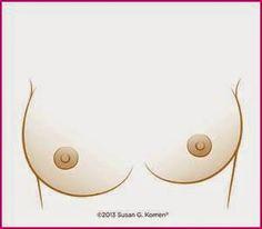 SIGNOS DEL CÁNCER DE MAMA Un cambio en el tamaño, la forma o la estructura de los pechos.