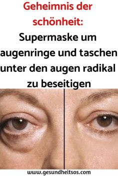 Secret of beauty: Super mask around dark circles and pocket .- Geheimnis der schönheit: Supermaske um augenringe und taschen unter den augen r… Secret of beauty: Super mask to eliminate dark circles and bags under the eyes radically - Makeup Tips Dark Skin, Makeup Hacks For Dark Circles, Eye Makeup, Dark Makeup, Beauty Secrets, Beauty Hacks, Diy Beauty, Afro Hair Care, Cute Makeup Looks