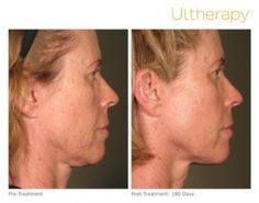 #Ultherapy® is a great alternative to a face lift for those not ready for surgery. *The non-invasive Ultherapy® procedure is U.S. FDA-cleared to lift skin on the neck, on the eyebrow and under the chin as well as to improve lines and wrinkles on the décolletage. The most common side effects reported in clinical trials were redness, swelling, pain, and transient nerve effects. For full product and safety information, visit www.ultherapy.com/IFU.