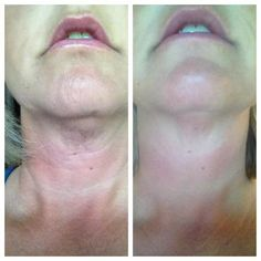 "How to Get the Best Results with your Nerium AD!   1. Take your ""before"" photo. Many NeriumAD users have missed taking their true ""before"" picture because they didn't believe the product would work so quickly!    2. Use NeriumAD correctly. Start with a clean, damp face. Then smooth 4-5 pumps of product on your neck and face. It will dry quickly and tighten like a mask. This is normal, as NeriumAD locks in your skin's moisture as you sleep. The following morning,rinse your skin with water."