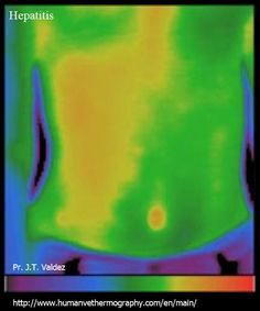 Hepatitis in human body, medical thermography