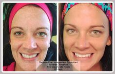 """It took Stephanie Poe 60 days to realize how great her skin could look without makeup! She used REVERSE in the morning and REDEFINE at night and says, """" I am a 100% believer in these products!"""" Another great before and after..... #LoveTheSkinYouAreIn"""