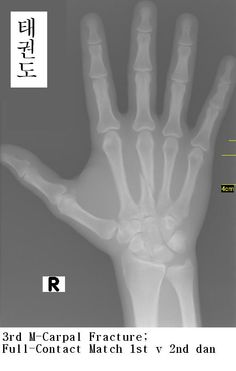 how to tell if finger is fractured