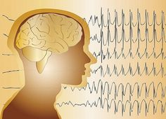 Anti-epileptic drug changes after epilepsy surgery may improve recovery of mood, memory and learning