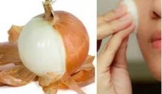 You Will Never Again Throw Away Onion Peels After Reading This Plus Jamais, Beauty Recipe, Natural Cosmetics, Weight Loss Tips, Natural Remedies, Garlic, Beauty Hacks, Healthy Living, Health Fitness