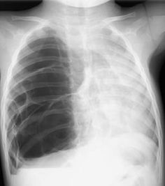 Congenital pulmonary airway malformations (CPAM) are multicystic masses of segmental lung tissue with abnormal bronchial proliferation. CPAMs are considered part of the spectrum of bronchopulmonary foregut malformations.  http://radiopaedia.org/articles/congenital-pulmonary-airway-malformation