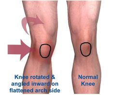 Image result for overpronation