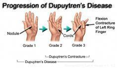 Dupuytren's Contracture Progression - Treatment By Needle Aponeurotomy Hand Therapy, Physical Therapy, Occupational Therapy, Dupuytren's Contracture Treatment, What Causes Arthritis, People With Hiv, Hand Surgery, Median Nerve, Family Nurse Practitioner