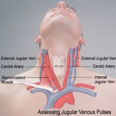 Kussmaul's Sign: CCTR -JVD or neck veins distend on INSPIRATION Cardiac Tamponade Constrictive Pericarditis Tricuspid Regurg. (if Severe) RV infarct and RV Failure Cardiac Assessment, Nursing Assessment, Cardiac Nursing, Nursing Notes, Nursing Tips, Vascular Ultrasound, Respiratory Therapy, Medical Anatomy, Human Anatomy And Physiology