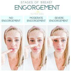 Some helpful tips for you!  ⭐️THE STAGES OF BREAST ENGORGEMENT⁣⭐️ ⁣ In the first days postpartum, your actual breast tissue swells and milk production starts, which causes engorgement. Your breasts can feel HOT, ITCHY, and ROCK HARD! ⁣ ⁣ No engorgement - your breasts will feel soft, like your lips.⁣ ⁣ Moderate engorgement - your breasts will feel mildly firm, like the tip of your nose.⁣ ⁣ Severe engorgement - your breasts will feel VERY hard, like your forehead.⁣ More on insta!
