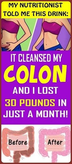 Cleanse Your Colon and Lose 30 Pounds within a Month Homemade Pimple Remedies, Sunburn Remedies, Acne Remedies, Herbal Remedies, Natural Remedies, Health Remedies, Natural Medicine, Herbal Medicine, Homemade Antibiotic