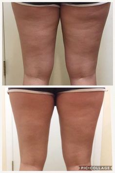 Some cases are due primarily to hereditary aspects, in which case you might have inherited a cellulite problem from your parents. If your moms and dad is covered in cellulite, then you probably will be too. Causes Of Cellulite, Lose Cellulite, Cellulite Scrub, Cellulite Exercises, Cellulite Cream, Cellulite Remedies, Anti Cellulite, Massage, Hair Growth