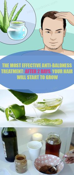 Every women and men be harrowed by this condition – male pattern baldness. be that as it may, the inquiry remains – what causes male pattern baldness?