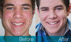 ACNEZINE - Acne Vulgaris Treatment That Works In days ~ Health Product Zone