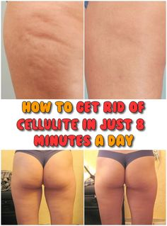 How to get rid of cellulite in just 8 minutes a day is part of fitness Don& spend your money on gym or inefficient treatments for cellulite, here you can learn how to get rid of it only with 8 minu - Fitness Workouts, Fitness Tips, Fitness Motivation, Health Fitness, Exercise Motivation, Cellulite Exercises, Cellulite Remedies, Cellulite Workout, Mommy Workout
