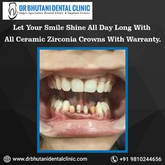 Let your all day long with all with Braces Cost, Root Canal Treatment, Dental Cosmetics, Teeth Braces, Best Dentist, Dental Implants, Dental Care, Dentistry, Crowns