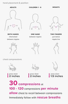 Cardiopulmonary resuscitation (CPR) keeps blood and oxygen flowing when a person's heart and breathing have stopped. We provide step-by-step instructions with illustrations. Survival Life Hacks, Survival Tips, Survival Skills, Survival Supplies, Outdoor Survival, Baby Life Hacks, Useful Life Hacks, Cpr Instructions, Le Mal A Dit