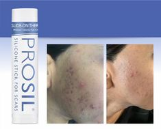 Wow Prosil does it again.see the amazing results from an Asian women who had severe Acne scarring due to Pre-menopause Acne Breakout, How To Treat Acne, Menopause, Stretch Marks, Acne Scars, Asian Woman, Your Skin, How To Apply, Skin Care