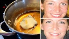 Fantastic Turkish recipe that reduces even the deepest wrinkles!