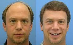 Hair restoration or hair transplant is a surgical procedure to solve baldness and hair loss problems in men and women. It is one of the most common methods in the market and very popular. It's a truth many men and women have to face this distressing situation in life.