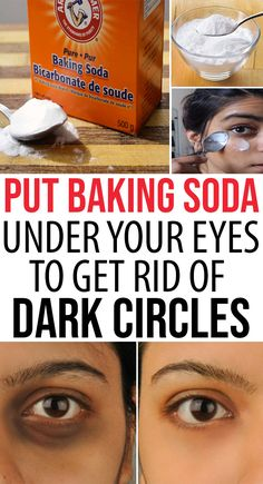 Put Baking Soda Under Your Eyes To Get Rid of Dark Circles Quickly Baking soda or sodium carbonate is prominent for cleansing and exfoliating your skin. Regular massage can help to improve blood circulation. Circulation Sanguine, Improve Blood Circulation, Massage, Dry Eyes Causes, Lotion, Dark Circles Under Eyes, Cream For Dark Circles, Eyes Problems, Beauty Cream