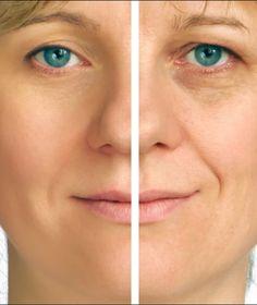 HOW TO GET RID OF WRINKLES UNDER EYES: half face correction of under eye wrinkles.  (Tips on how to get rid of under eye wrinkles.) #undereyewrinkles