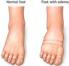 Edema causes swelling of feet and body due to water retention in the tissues. Here are 10 useful acupressure points for Edema and water retention cure.