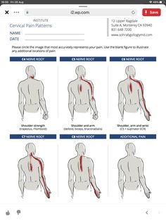 Muscle Anatomy, Body Anatomy, Severe Neck Pain, Cervical Pain, Radiculopathy, Spine Health, Neck And Shoulder Pain, Medical Anatomy, Anatomy And Physiology