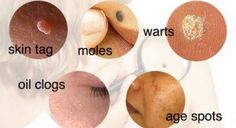 How To Remove Moles, Warts, Blackheads, Skin Tags, and Age Spots Completely Naturally | World Truth.TV