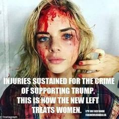 This is the Libertard Zombie Slimes idea of supporting women! That Voted for Trump! Liberal Hypocrisy, Liberal Logic, Politicians, Stupid Liberals, Conservative Politics, Real Politics, Political Views, Political Topics, Hard Truth