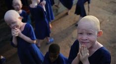 Pope Francis launches a campaign to help African Albinos