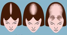 There are hair disorders that are more than just a few daily strands of hair falling out. Keep reading our article and find out more about these hair Prevent Heart Attack, Health And Wellness, Health Fitness, Healthy Holistic Living, Hair Falling Out, Most Common, Diabetes Management, Skin Tips, Mental Health