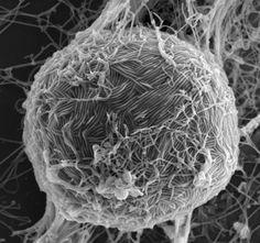 Ebola whole virus vaccine shown effective, safe in primates - http://scienceblog.com/77540/ebola-whole-virus-vaccine-shown-effective-safe-in-primates/