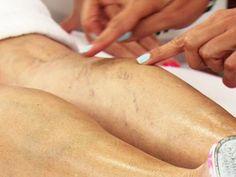 5 remedios caseros para eliminar las varices o arañitas en las piernas