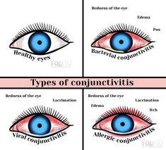 For anybody who is suffering from itchy, watery eyes, conjunctivitis might be to blame. Find out about pink eye home remedies.