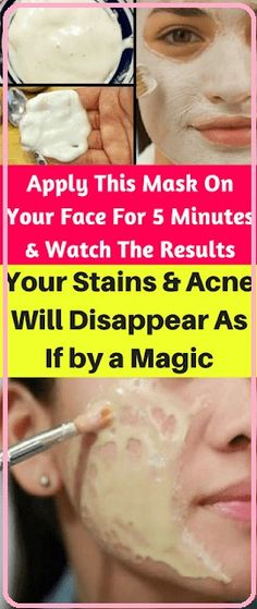 Apply This Mask On Your Face For 5 Minutes & Watch The Results– Your Stains & Acne Will Disappear As If By A Magic! Health Clear Skin Health Remedies Health Tips Health For women Health Natural Health Tips Health Tips For Women, Health And Beauty, Health Advice, Health Care, Mental Health, Healthy Tips, Healthy Skin, Healthy Drinks, Healthy Women