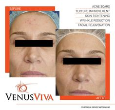 Say goodbye to redness. #beforeandafter Venus Viva treatments #pigmentation #scartreatment