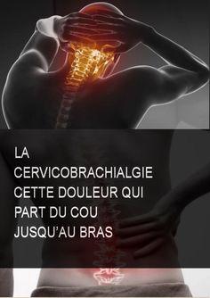 La cervicobrachialgie cette douleur qui part du cou jusqu'au bras #Douleur #Jus #Cervicobrachialgie #Art Stress, Dire, Massage, Movie Posters, Sport, Cervical Pain, The Body, Fibromyalgia, Deporte