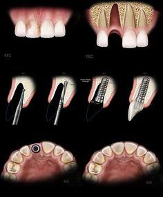 Ablauf einer Sofortimplantation für Zahnimplantate