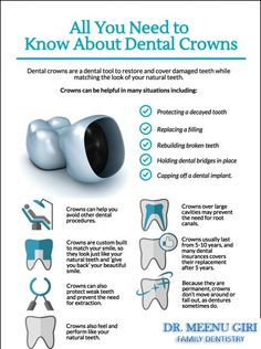 Crowns are full coverage restorations that are used to cover a tooth that is likely to break, or is too broken down to be restored with a filling. It takes two appointments to restore a with a Visit us Tooth Implant Oral Surgery Teeth Implants, Dental Implants, Dental Life, Dental Health, Oral Health, Smile Dental, Health Tips, Health Care, Sedation Dentistry