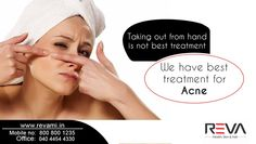 Taking out from hand is not best treatment, we have best treat for acne Contact us for more Details--> http://www.revami.in/  #Acne #Pimples #skincare #acneawareness