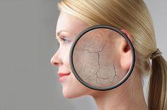 Cara mengatasi wajah kering – Kulit wajah yang kering dan kusam merupakan suatu masalah dari sebagian diantara kita. Jika tidak dilakukan perawatan serius, maka kondisi ini akan mempengaruhi penamp… http://caraputihalami.com/cara-mengatasi-kulit-wajah-kering-dan-kusam-secara-alami