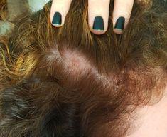 Trichotin Hair Regenesis Review & Hair Loss Update