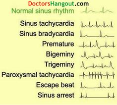 EKG A reason to call so many people Tachy and use it in a medical refrence. Nursing School Tips, Nursing Tips, Nursing Notes, Nursing Programs, Nursing Cheat Sheet, Funny Nursing, Nursing Schools, Medical School, Physician Assistant