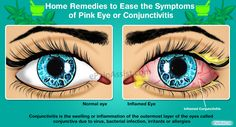 Home remedies go a long way in easing the symptoms of pink eye or conjunctivitis and helping the sufferers. Learn about the cures for pink eye at home and the do's and don'ts if you are infected with it.