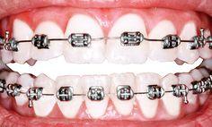 ¿En qué consiste la asistencia social dental? #dientes #salud