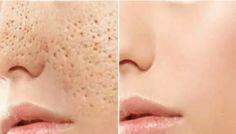Você precisa apenas de 3 dias para fechar todos os poros abertos no rosto graças a estas 4 soluções naturais muito eficazes