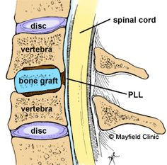 Anterior cervical discectomy and fusion (ACDF) is a surgery to remove a herniated or degenerative disc in the neck area of the spine. The incision is made in the front of the spine through the throat area. Neck Surgery, Spine Surgery, Stenosis Of The Spine, Acdf Surgery, Spinal Fusion Surgery, Spondylolisthesis, Degenerative Disc Disease, Yoga For Back Pain, Fibromyalgia